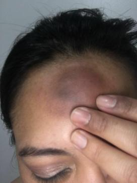 Ecuador mujeres lesbianas agredidas brutalmente diario el diverso (2)