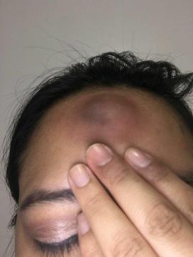 Ecuador mujeres lesbianas agredidas brutalmente diario el diverso (3)