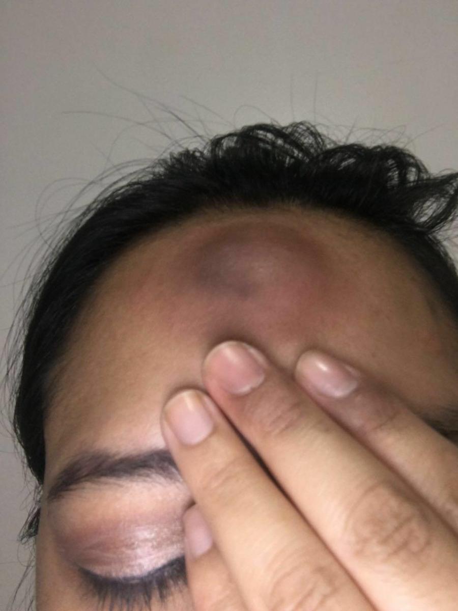 #Ecuador| mujeres lesbianas agredidas brutalmente