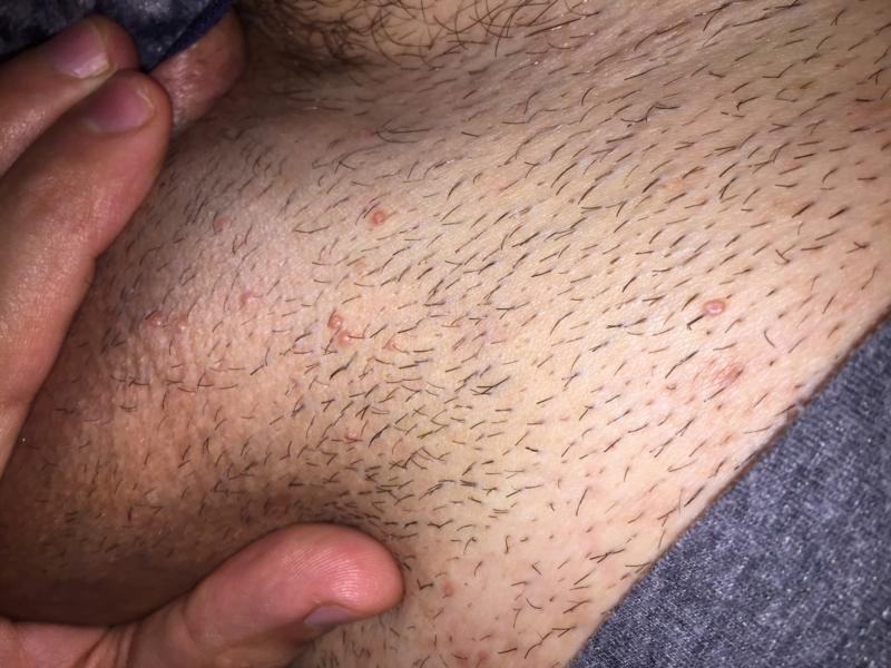 que es herpes genital y sus sintomas